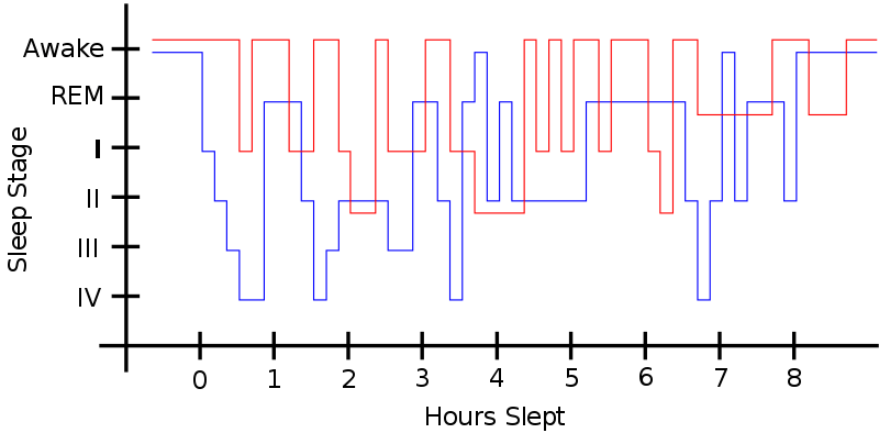 "Sleep pattern of a Restless Legs Syndrome patient (red) vs. a healthy sleep pattern (blue). Y-Axis shows ""Stage of Sleep."""