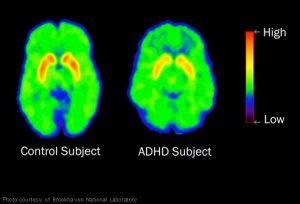brookhaven brain scan adhd child